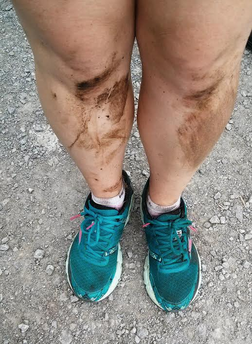 Legs after a trail run