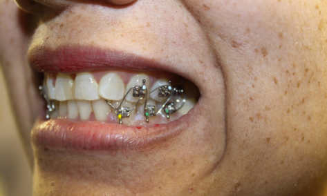 A picture of a person's mouth, open and showing upper and lower teeth on the side wired together with orthodontia