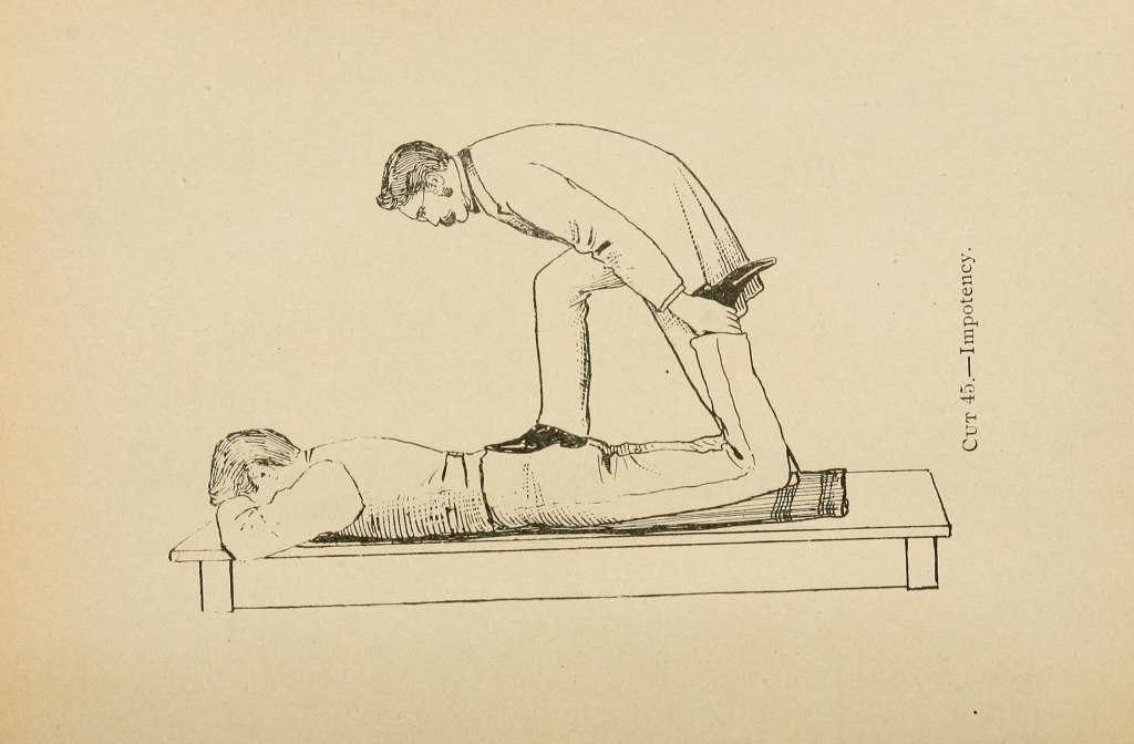 A line drawing of a 19th century gentleman standing with one dress shoe clad food on the sacrum of another 19th century gentleman while  pulling up on that patient's left ankle. Very serious business this treatment of impotence.